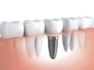 Implanty zebow (3)